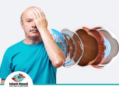 اعراض انفصال الشبكية
