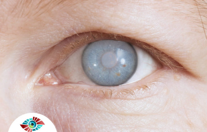 اعراض المياه البيضاء في العين اعرفها مع د اسلام حسني